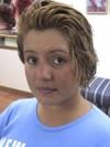Cubrir Alopecias