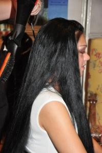 Solucion alopecias madrid