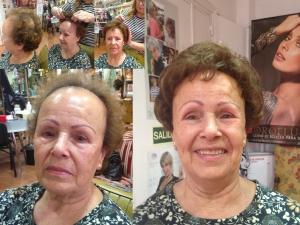 antes y después de nuestros servicios de colocación de prótesis capilares de mujer