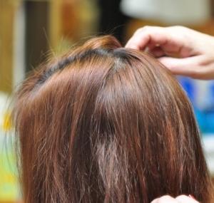 alopecias antes y despues de nuestros tratamientos en soledad cabello