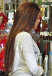 alopecias en jovenes