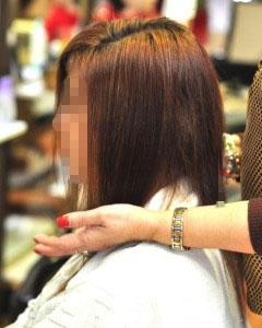 cubrimiento-alopecias-en-jovenes-240x300