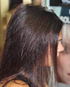 cubrimiento de alopecias en jovenes