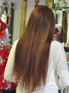 tratamiento alopecias en madrid