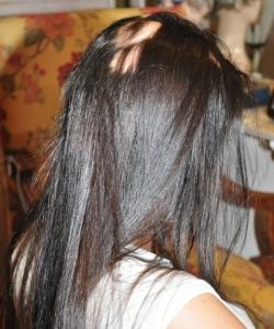 tratamiento de alopecias en jovenes