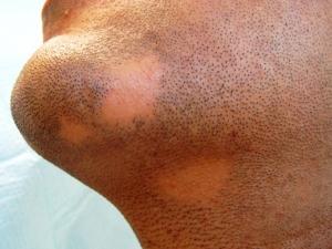 Alopecia en barba