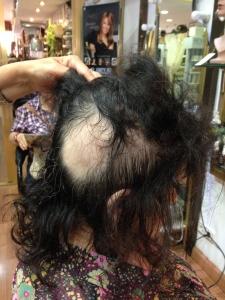 clienta para tapar alopecias