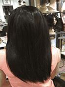 alopecia-delantera-despues-de-acultar-alopecia