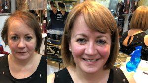 antes y despues de los servicios para cubrir alopecias en soledad cabello pelucas y extensiones madrid